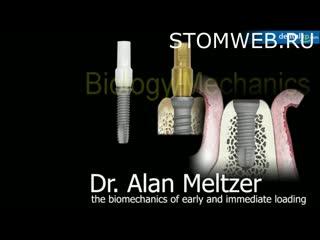 Biomechanical Consideration in Immediate Loading