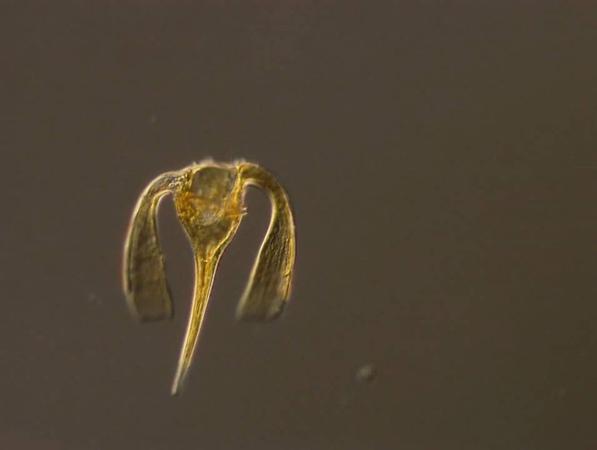 Ceratium platycorne, a dinoflagellate of the marine plankton, shows off its flagellum