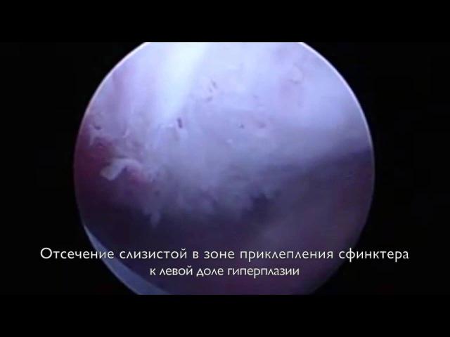 Удаление аденомы простаты больших размеров лазером