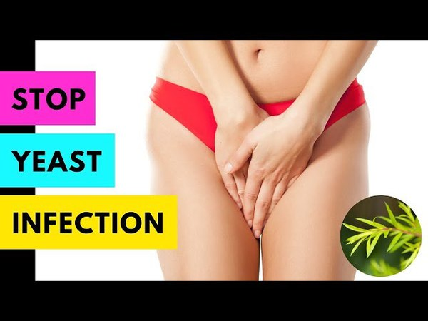 Yeast Infection Tea Tree Oil - How to Get Rid of Yeast Infection │ Vaginal Yeast Infection