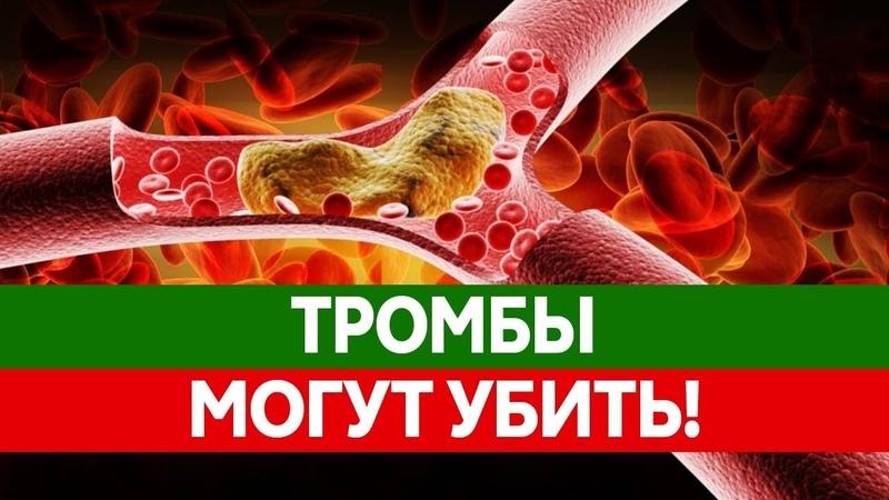 Как ТРОМБЫ УБИВАЮТ тысячи людей Что делать если тромб оторвался Тромбоэмболия и ее последствия