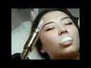 Увеличение губ на Гиалурон Пэн Hyaluron pen