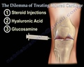 Knee pain ,arthritis and Injured Cartilage - Everything You Need To Know - Dr. Nabil Ebraheim, M.D.