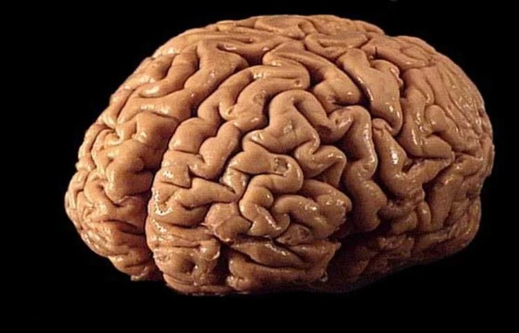 Что такое инсульт мозга?