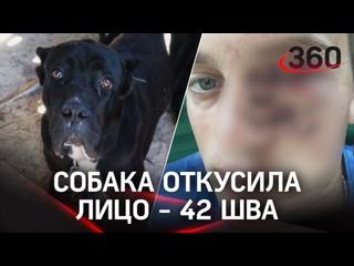 Собака съела пол-лица будущему зятю в коттеджном поселке под Вологдой. Кане-корсо не любит пьяных