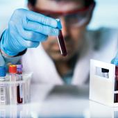 Определение железодефицитной анемии