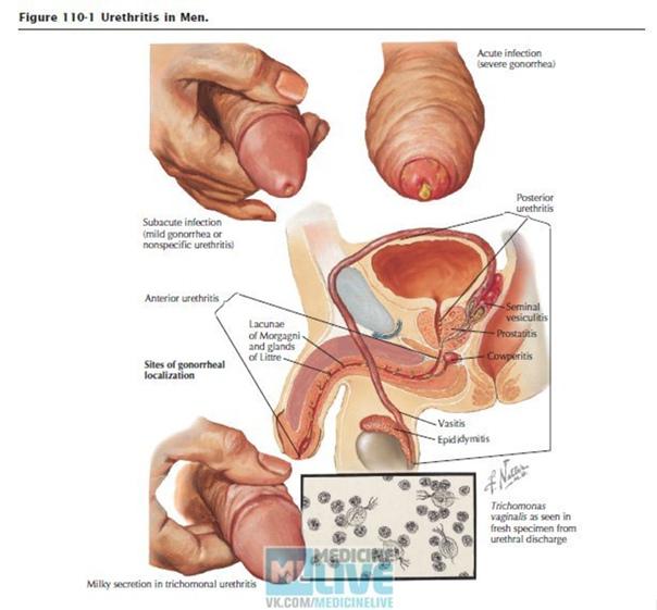Faringit prosztatitis