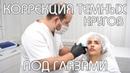 Как убрать круги под глазами косметология Москва, Южное Чертаново